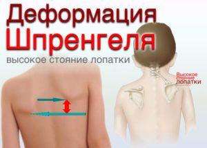 Как действует ортопедический массаж, приводим примеры